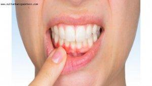 Diş eti çekilmesine dikkat