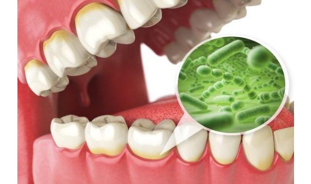 Diş etindeki bakteri oluşumuna dikkat